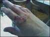 Frankenhand